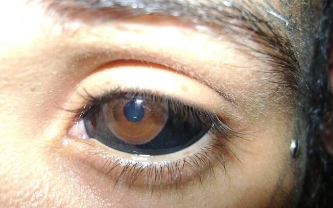 Verdes Branco Tatuado Ativasso Olhos